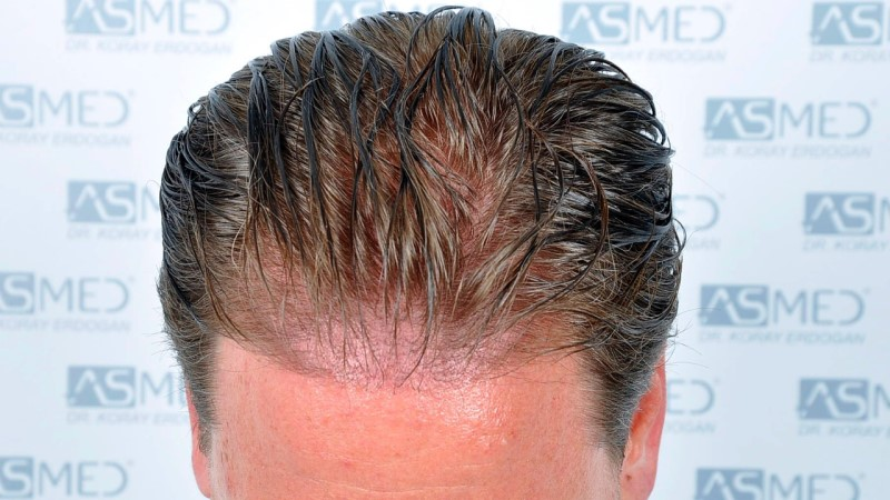 https://www.hairtransplantfue.org/asmed-hair-transplant-result/upload/Norwood3/2450-grafts-FUE/before/Before%202_V2.jpg
