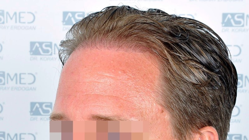 https://www.hairtransplantfue.org/asmed-hair-transplant-result/upload/Norwood3/2450-grafts-FUE/before/Before%203_V2.jpg