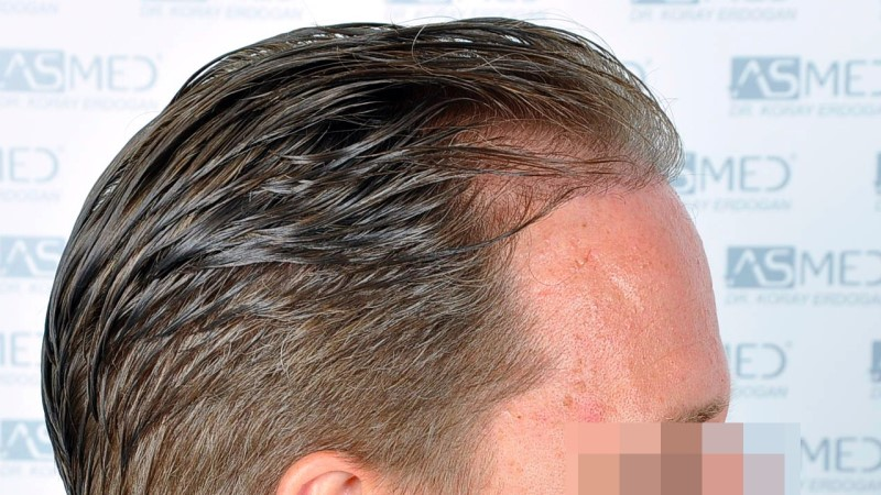 https://www.hairtransplantfue.org/asmed-hair-transplant-result/upload/Norwood3/2450-grafts-FUE/before/Before%204_V2.jpg