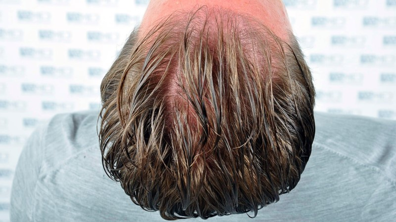 https://www.hairtransplantfue.org/asmed-hair-transplant-result/upload/Norwood3/2450-grafts-FUE/before/_Before%205_V2.jpg