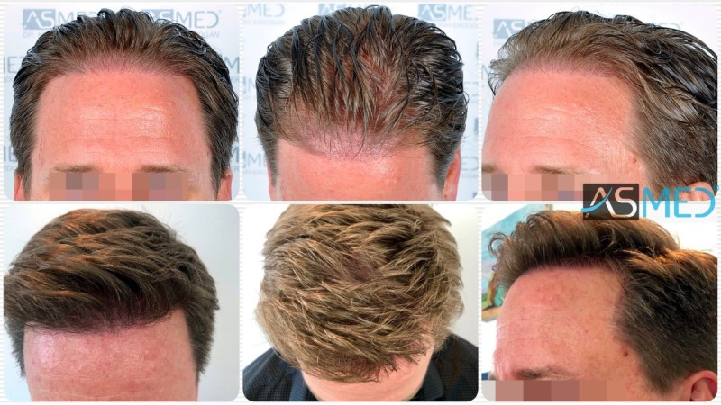 https://www.hairtransplantfue.org/asmed-hair-transplant-result/upload/Norwood3/2450-grafts-FUE/kolaj.jpg