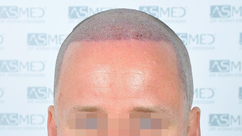 https://www.hairtransplantfue.org/asmed-hair-transplant-result/upload/Norwood3/2450-grafts-FUE/operation/Operation%201_V2.jpg
