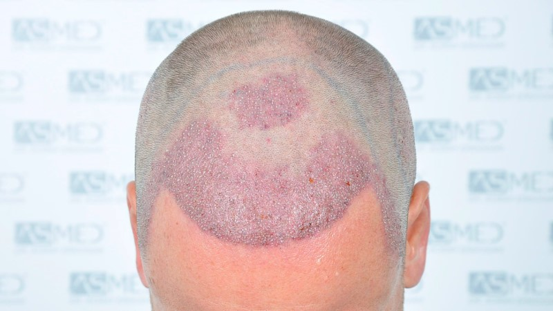 https://www.hairtransplantfue.org/asmed-hair-transplant-result/upload/Norwood3/2450-grafts-FUE/operation/Operation%202_V2.jpg