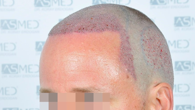 https://www.hairtransplantfue.org/asmed-hair-transplant-result/upload/Norwood3/2450-grafts-FUE/operation/Operation%203_V2.jpg