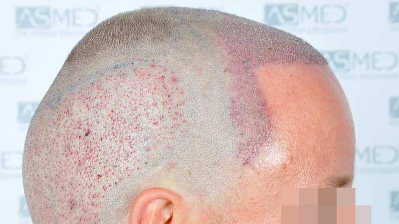 https://www.hairtransplantfue.org/asmed-hair-transplant-result/upload/Norwood3/2450-grafts-FUE/operation/Operation%204_V2.jpg