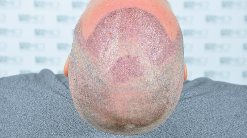 https://www.hairtransplantfue.org/asmed-hair-transplant-result/upload/Norwood3/2450-grafts-FUE/operation/Operation%205_V2.jpg