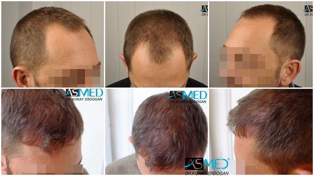 Dr Koray Erdogan - 2603 grafts FUE
