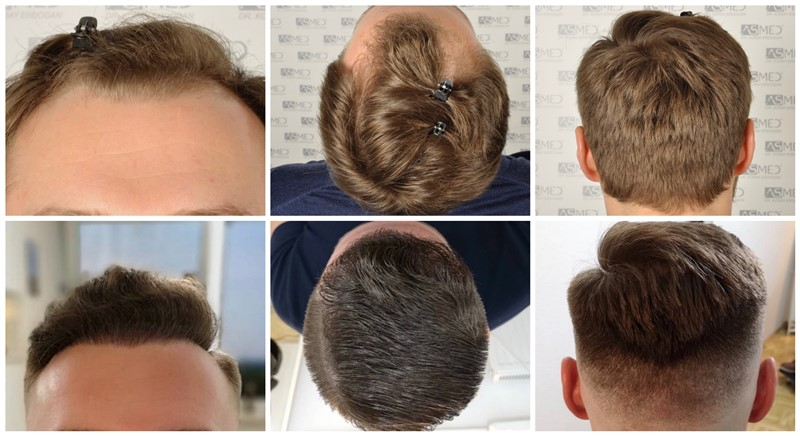 Dr Koray Erdogan -  2617 grafts FUE