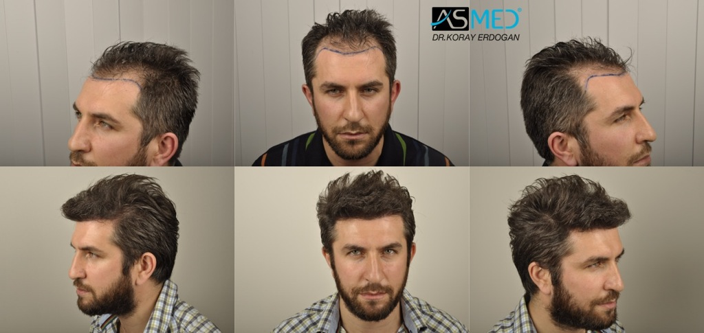 Dr Koray Erdogan - 2800 grafts FUE