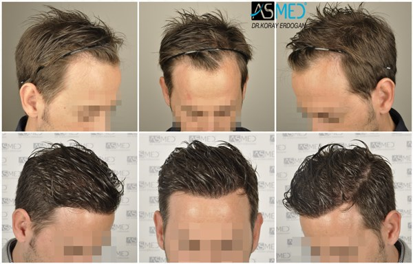 Dr Koray Erdogan - 2806 grafts FUE