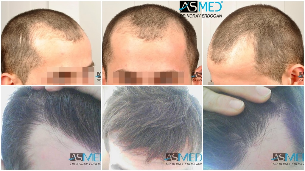 Dr Koray Erdogan - 2816 grafts FUE