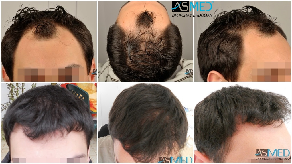 Dr Koray Erdogan - 3019 grafts FUE