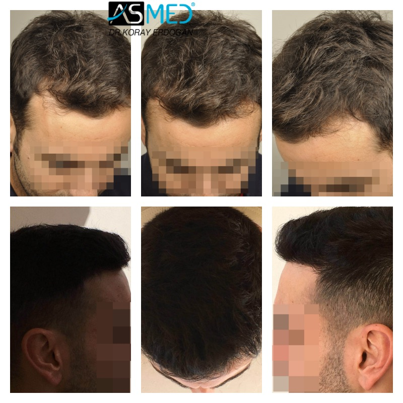 Dr Koray Erdogan - 3211-grafts-FUE