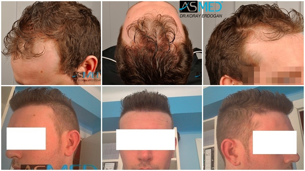 Dr Koray Erdogan - 3230 grafts FUE