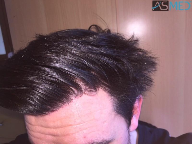 https://www.hairtransplantfue.org/asmed-hair-transplant-result/upload/Norwood3/3248-grafts-FUE/18month/c4_V2.jpg