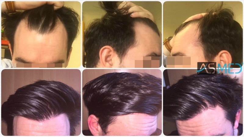Dr. Koray Erdogan - 3248 Grafts FUE