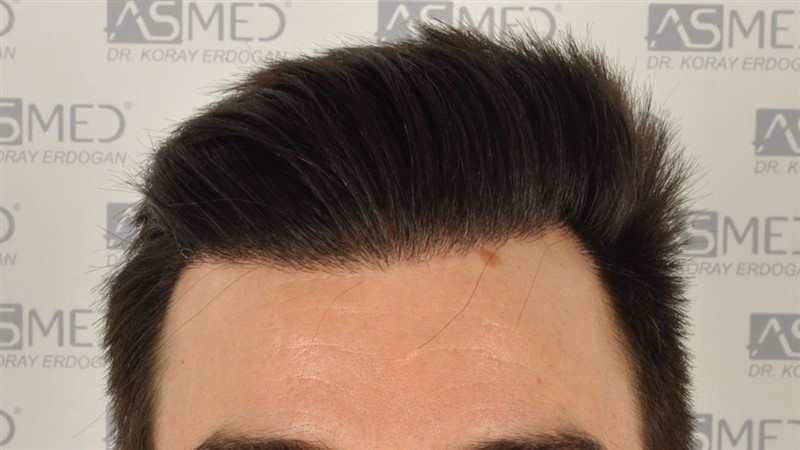 https://www.hairtransplantfue.org/asmed-hair-transplant-result/upload/Norwood3/3408-grafts-FUE/1year6months/dry/_DSC8247.jpg