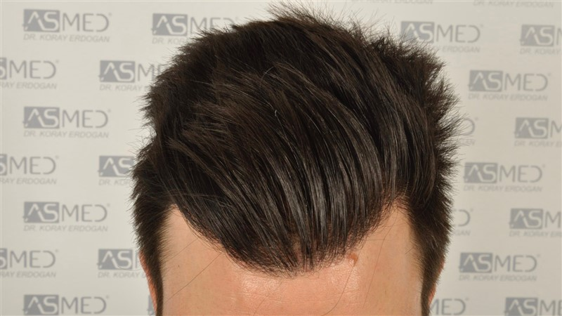 https://www.hairtransplantfue.org/asmed-hair-transplant-result/upload/Norwood3/3408-grafts-FUE/1year6months/dry/_DSC8248.jpg