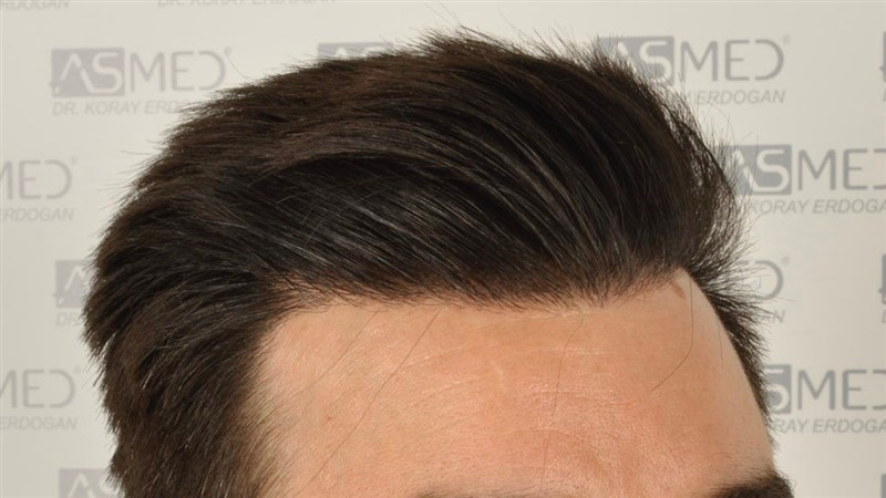 https://www.hairtransplantfue.org/asmed-hair-transplant-result/upload/Norwood3/3408-grafts-FUE/1year6months/dry/_DSC8249.jpg