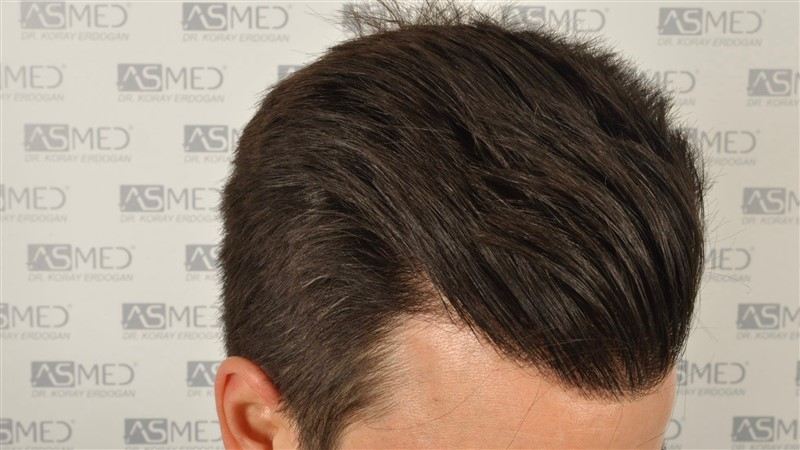 https://www.hairtransplantfue.org/asmed-hair-transplant-result/upload/Norwood3/3408-grafts-FUE/1year6months/dry/_DSC8250.jpg