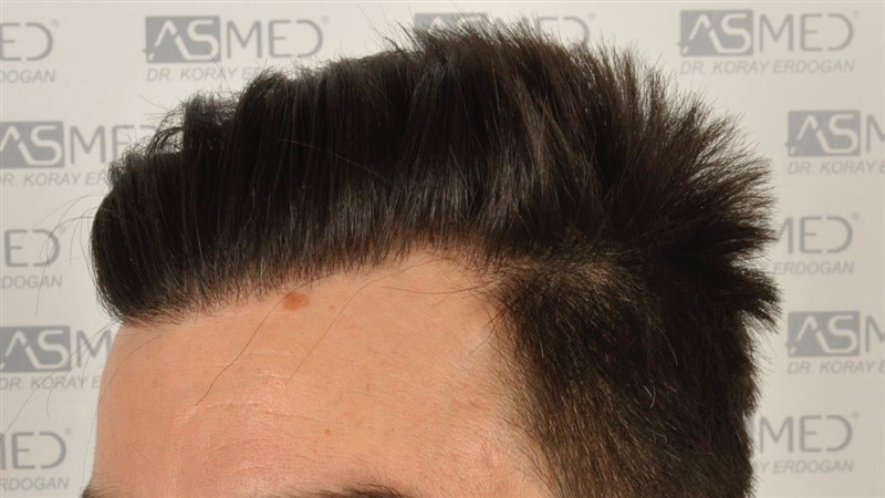 https://www.hairtransplantfue.org/asmed-hair-transplant-result/upload/Norwood3/3408-grafts-FUE/1year6months/dry/_DSC8251.jpg