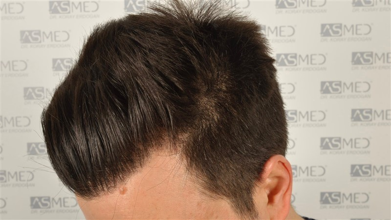 https://www.hairtransplantfue.org/asmed-hair-transplant-result/upload/Norwood3/3408-grafts-FUE/1year6months/dry/_DSC8252.jpg