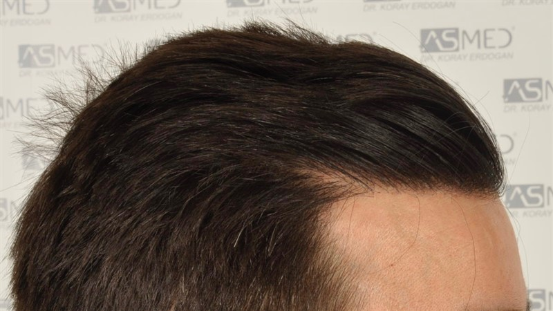 https://www.hairtransplantfue.org/asmed-hair-transplant-result/upload/Norwood3/3408-grafts-FUE/1year6months/dry/_DSC8255.jpg