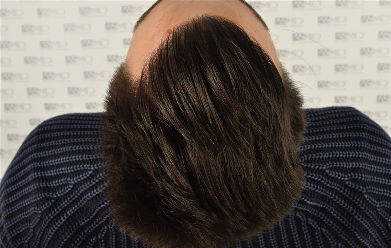 https://www.hairtransplantfue.org/asmed-hair-transplant-result/upload/Norwood3/3408-grafts-FUE/1year6months/dry/_DSC8257.jpg