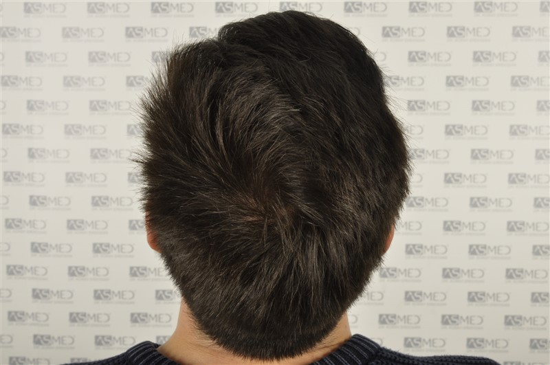 https://www.hairtransplantfue.org/asmed-hair-transplant-result/upload/Norwood3/3408-grafts-FUE/1year6months/dry/_DSC8257_.jpg