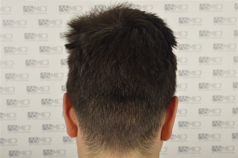 https://www.hairtransplantfue.org/asmed-hair-transplant-result/upload/Norwood3/3408-grafts-FUE/1year6months/dry/_DSC8258.jpg