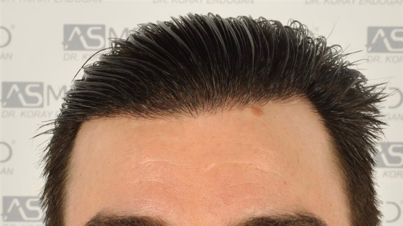 https://www.hairtransplantfue.org/asmed-hair-transplant-result/upload/Norwood3/3408-grafts-FUE/1year6months/wet/_DSC8259.jpg