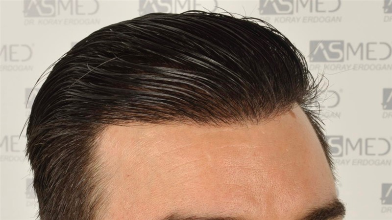 https://www.hairtransplantfue.org/asmed-hair-transplant-result/upload/Norwood3/3408-grafts-FUE/1year6months/wet/_DSC8261.jpg