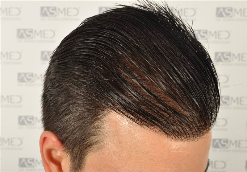 https://www.hairtransplantfue.org/asmed-hair-transplant-result/upload/Norwood3/3408-grafts-FUE/1year6months/wet/_DSC8262.jpg