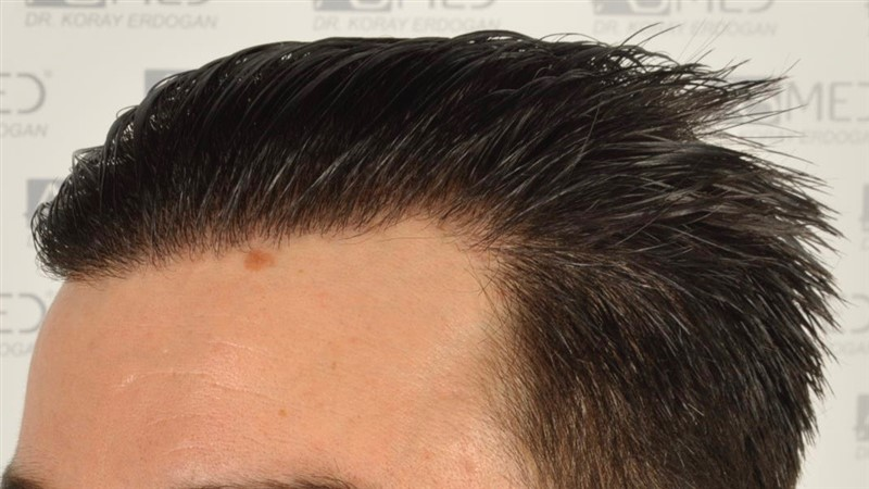 https://www.hairtransplantfue.org/asmed-hair-transplant-result/upload/Norwood3/3408-grafts-FUE/1year6months/wet/_DSC8263.jpg