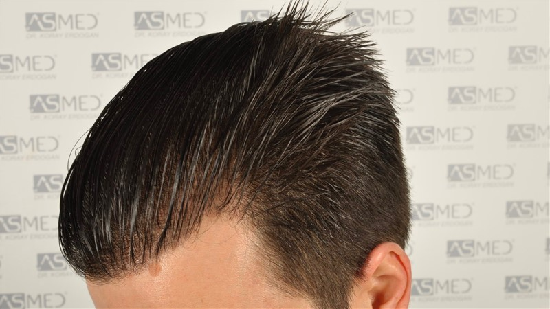 https://www.hairtransplantfue.org/asmed-hair-transplant-result/upload/Norwood3/3408-grafts-FUE/1year6months/wet/_DSC8264.jpg