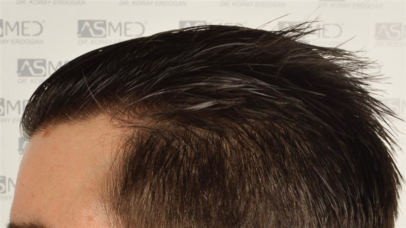 https://www.hairtransplantfue.org/asmed-hair-transplant-result/upload/Norwood3/3408-grafts-FUE/1year6months/wet/_DSC8267.jpg