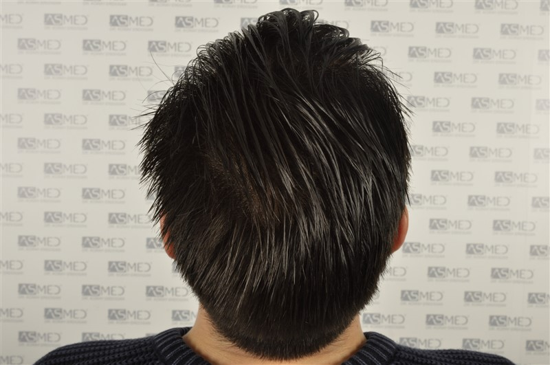 https://www.hairtransplantfue.org/asmed-hair-transplant-result/upload/Norwood3/3408-grafts-FUE/1year6months/wet/_DSC8269.jpg