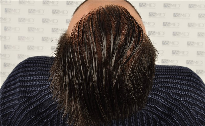 https://www.hairtransplantfue.org/asmed-hair-transplant-result/upload/Norwood3/3408-grafts-FUE/1year6months/wet/_DSC8270.jpg