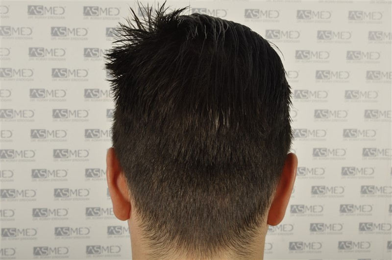 https://www.hairtransplantfue.org/asmed-hair-transplant-result/upload/Norwood3/3408-grafts-FUE/1year6months/wet/_DSC8271.jpg