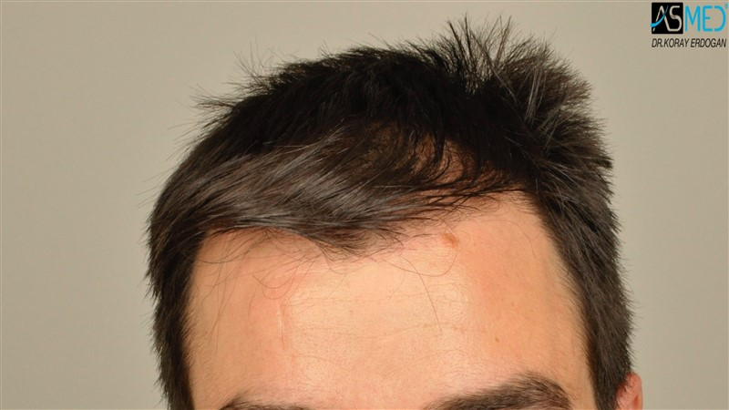 https://www.hairtransplantfue.org/asmed-hair-transplant-result/upload/Norwood3/3408-grafts-FUE/before/dry/V2__DSC9974aaa.jpg