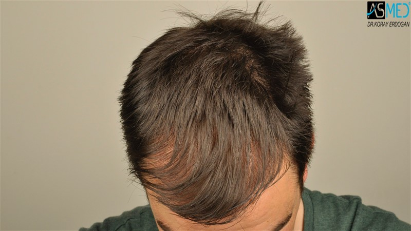 https://www.hairtransplantfue.org/asmed-hair-transplant-result/upload/Norwood3/3408-grafts-FUE/before/dry/V2__DSC9976aaa.jpg