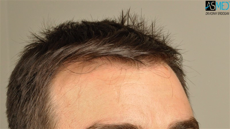 https://www.hairtransplantfue.org/asmed-hair-transplant-result/upload/Norwood3/3408-grafts-FUE/before/dry/V2__DSC9977aaa.jpg