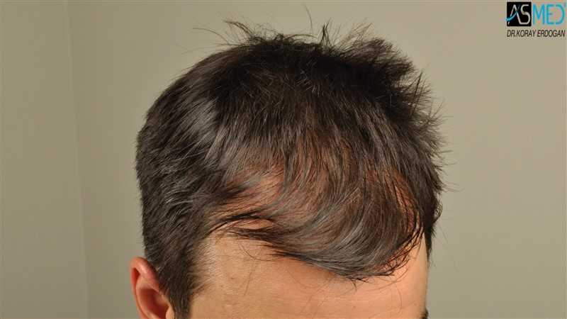 https://www.hairtransplantfue.org/asmed-hair-transplant-result/upload/Norwood3/3408-grafts-FUE/before/dry/V2__DSC9978aaa.jpg