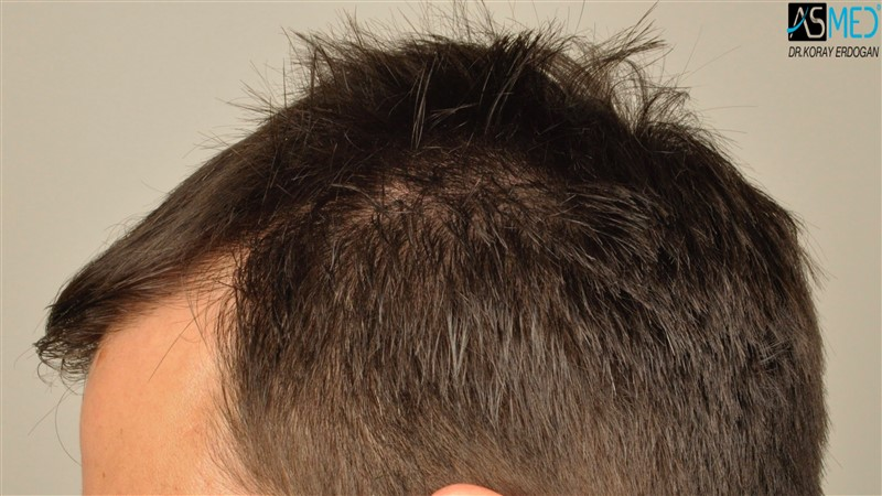 https://www.hairtransplantfue.org/asmed-hair-transplant-result/upload/Norwood3/3408-grafts-FUE/before/dry/V2__DSC9983aaa.jpg