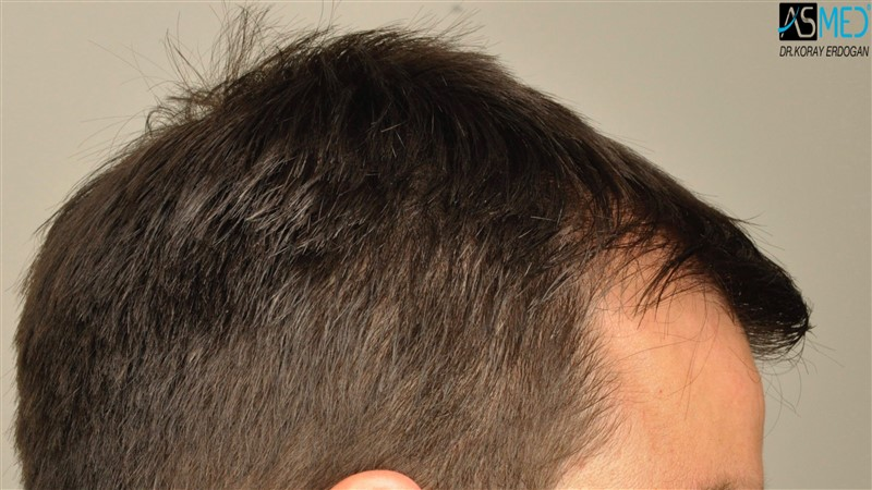https://www.hairtransplantfue.org/asmed-hair-transplant-result/upload/Norwood3/3408-grafts-FUE/before/dry/V2__DSC9984aaa.jpg