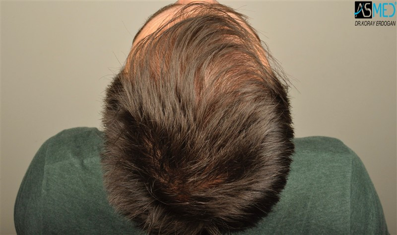 https://www.hairtransplantfue.org/asmed-hair-transplant-result/upload/Norwood3/3408-grafts-FUE/before/dry/V2__DSC9986aaa.jpg