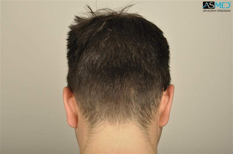 https://www.hairtransplantfue.org/asmed-hair-transplant-result/upload/Norwood3/3408-grafts-FUE/before/dry/V2__DSC9987aaa.jpg
