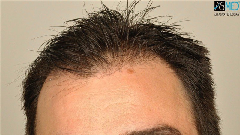 https://www.hairtransplantfue.org/asmed-hair-transplant-result/upload/Norwood3/3408-grafts-FUE/before/wet/V2__DSC9987aaa.jpg