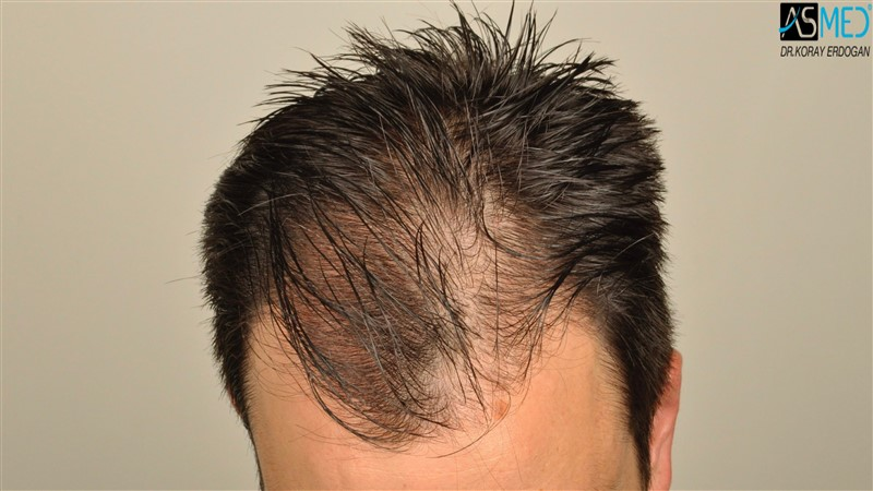 https://www.hairtransplantfue.org/asmed-hair-transplant-result/upload/Norwood3/3408-grafts-FUE/before/wet/V2__DSC9988aaa.jpg
