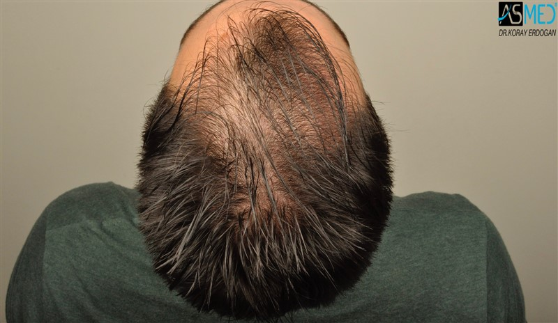 https://www.hairtransplantfue.org/asmed-hair-transplant-result/upload/Norwood3/3408-grafts-FUE/before/wet/V2__DSC9989aaa.jpg